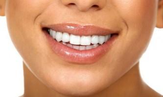 Біла дієта для зубів: зберігаємо результат на довго!