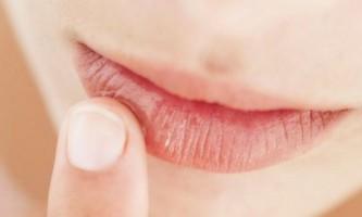 Що робити якщо губи сохнуть і тріскаються