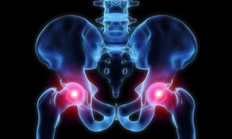 Дієта при артрозі суглобів