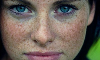 Домашні маски від пігментних плям на обличчі - дієві способи видалення і відбілювання пігментних плям