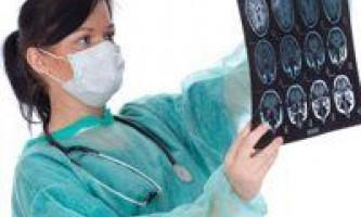 Гідроцефалія у новонароджених, ознаки і лікування