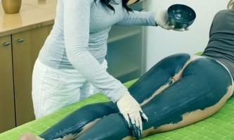 Глина від варикозу: методи лікування