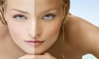 Як швидко відбілити шкіру обличчя після засмаги?