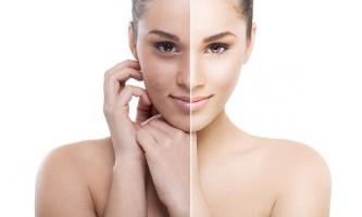 Як і чим можна провести відбілювання шкіри обличчя в домашніх умовах