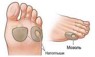 Як позбутися від сухих мозолів на ногах