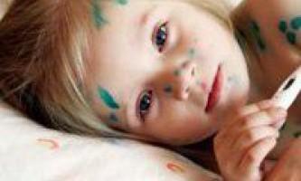 Як не заразитися вітрянкою від дитини, методи профілактики захворювання
