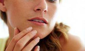 Як прибрати чорні крапки на обличчі в домашніх умовах, причини їх появи
