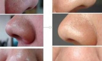 Як прибрати чорні крапки на носі в домашніх умовах. Відео - фото