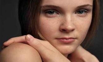 Як видалити пігментні плями на обличчі