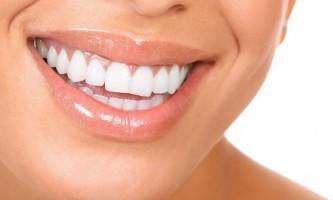 Яке відбілювання зубів є найбільш ефективним?