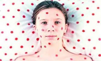 Краснуха - симптоми хвороби