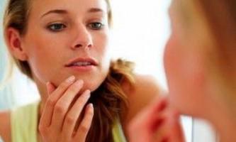 Лікування себорейного псоріазу волосистої частини голови