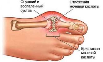 Народні методи і способи лікування подагри