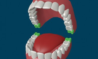 Чи потрібно видаляти зуб мудрості?