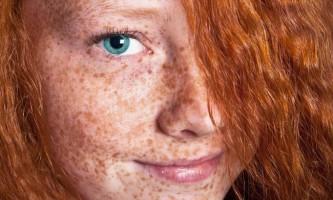 Відбілювання обличчя в домашніх умовах
