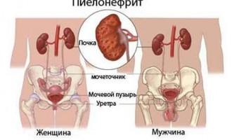 Пієлонефрит лікування народними засобами