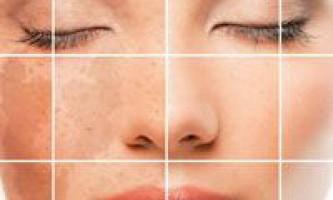 Пігментні плями на обличчі: причини - види - лікування - відео
