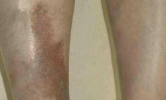Чому чорніють ноги нижче колін. Що робити