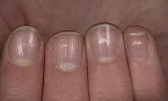 Чому на нігтях з`явилися білі плями
