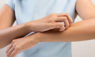 Чому сохне шкіра рук і що з цим робити?