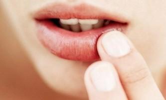Чому тріскаються куточки губ і як лікувати