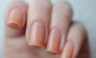 Чому жовтіють нігті на руках?
