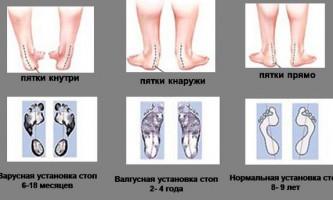 Проблема плоскостопості у дітей