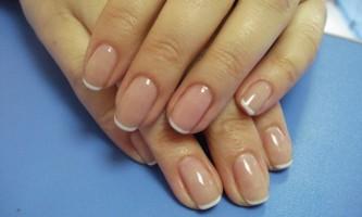Псоріаз нігтів: симптоми і лікування народними засобами в домашніх умовах