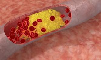 Цукровий діабет і підвищений холестерин в крові