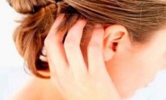 Способи лікування псоріазу в домашніх умовах