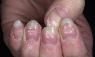 Хвиляста поверхня нігтів: причини і способи вирішення проблеми