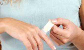Виведення бородавок, профілактика появи і боротьба з ними