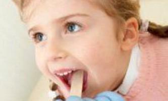 Жовтий мову у дитини, причини зміни кольору і лікування